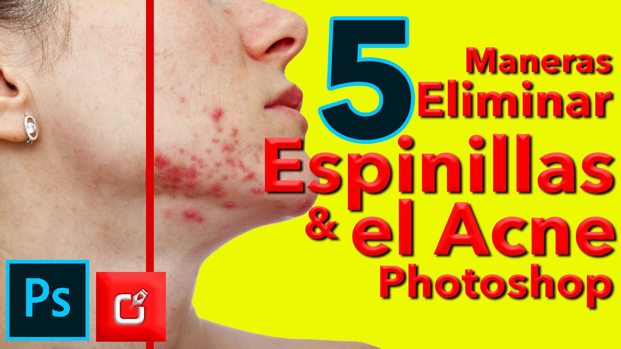 5 maneras de eliminar las espinillas en photoshop